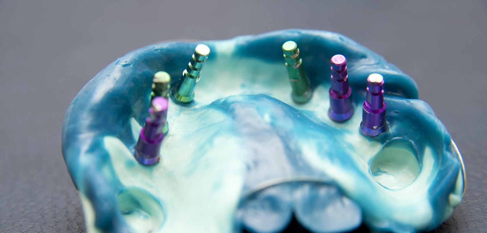 Couronne Céramo-Métallique sur implant