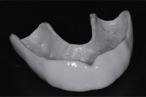 Protège dents